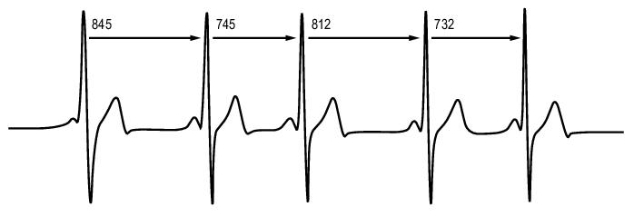 La variabilité de la fréquence cardiaque correspond à l'écart de temps entre 2 battements du cœur. Et oui, le cœur ne bat pas de façon régulière, et c'est signe de bonne santé ! (source polar).